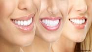 Dentes claros e sorriso brilhante: saiba como consegui-los