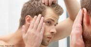 Como saber se vou ser calvo e como tratar a calvície?