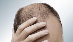A calvície pode ser causada pelo estresse, uso de alguns medicamentos. Foto: Reprodução