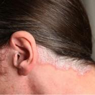 Pessoas alérgicas devem usar outros meios para mudar a cor dos seus cabelos ou cobrir os fios brancos, como a aplicação de Henna ou shampoos tonalizantes