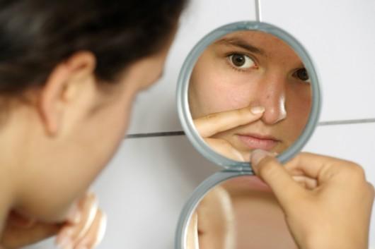 Estética facial - tipos de acne e seus tratamentos