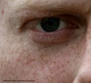 Estética facial - tratamentos para sardas e manchas senis