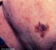 O lentigo maligno é uma mancha larga, que não tem a forma definida