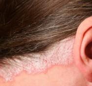 Estética facial - cuidados e tratamentos para psoríase