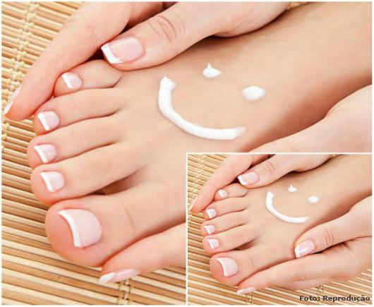 Foto de pés feios, rachados e grossos em tratamento