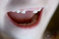 Meu filho sofreu um acidente e perdeu um dente. E agora? O que fazer?