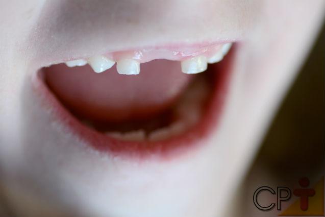Meu filho sofreu um acidente e perdeu um dente. E agora? O que fazer?   Artigos Cursos CPT