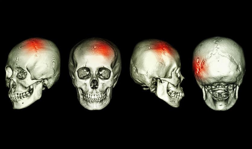 Trauma de crânio é grave. Saiba como agir!   Artigos Cursos CPT
