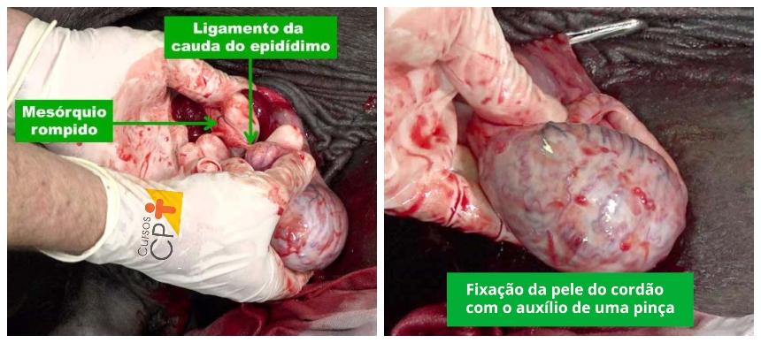 Ruptura do mesotério, ligamento da cauda do epidídimo e fixação da pele do cordão     CPT