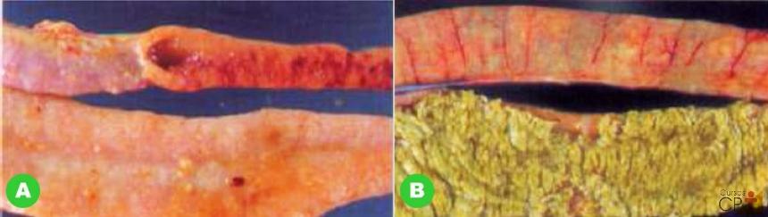 (A) segmento intestinal com pontos de lesão e (B) segmento intestinal com estrias de vaso.