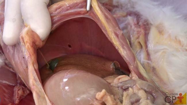 Teste de pressão negativa do tórax com perfuração do diafragma   Artigos Cursos CPT