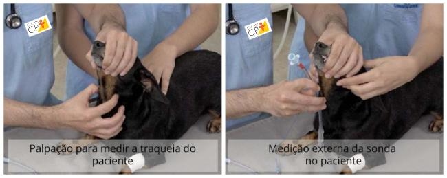 Palpação para verificar a medida da traqueia do paciente e Medição externa da sonda no paciente Artigos CPT