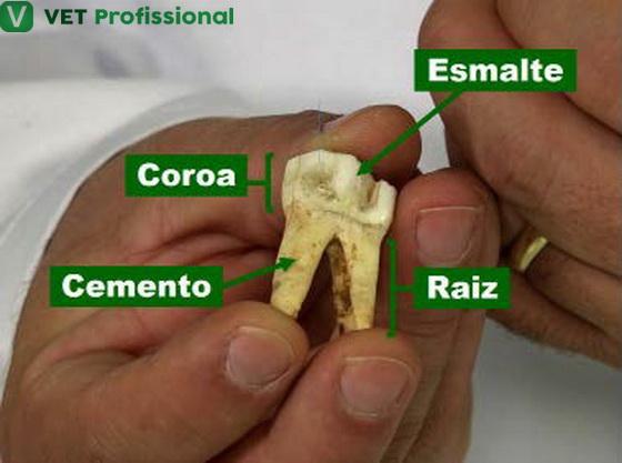 Partes do dente e seus revestimentos.