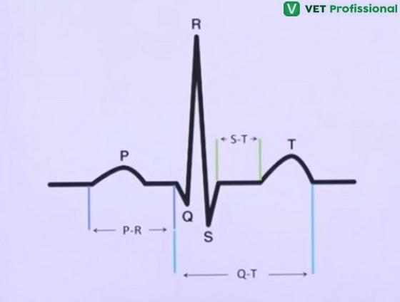 Atividade elétrica no coração, representando 1 ciclo (batimento) cardíaco.