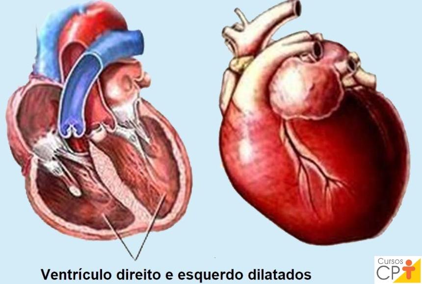Coração com cardiomiopatia dilatada.   Artigos CPT