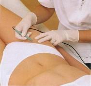 Como evitar manchas depois da depilação