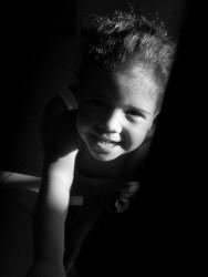 A criança e o TDA/H: características da hiperatividade
