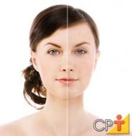 Estética facial: acne