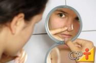 Estética facial: tratamentos alternativos contra acne