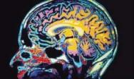Aprenda Fácil Editora: Cientistas Descobrem Local Formador da Memória de Curto Prazo no Cérebro
