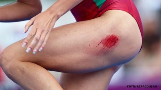 Corte, furos, arranhões e esfolados são classificados como ferimentos
