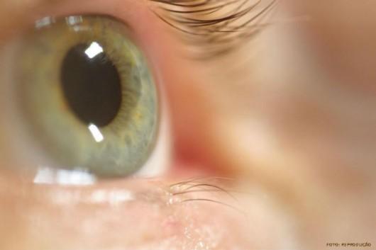 Os sintomas da hemorragia interna nem sempre são aparentes, mas alguns podem ocorrer como apresentar as pupilas dilatadas
