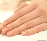 Tratamento das unhas - infecção bacteriana, psoríase, tumores e verrugas