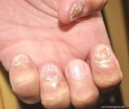 Infecção bacteriana, psoríase, tumores e verrugas.