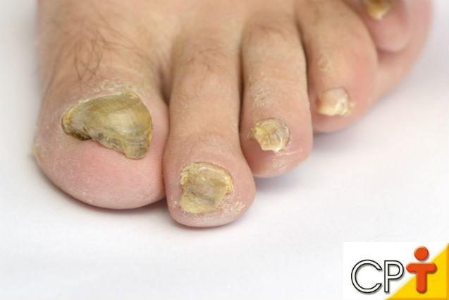 Tratamento das unhas: infecção por fungos e bactérias   Artigos Cursos CPT