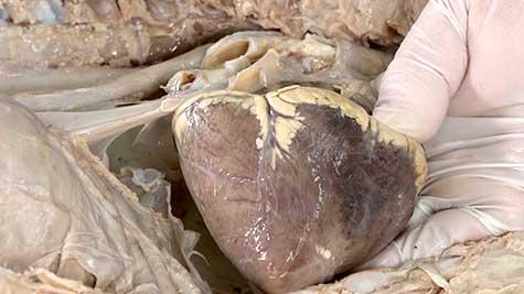 Aparelho Cardiovascular - Coração