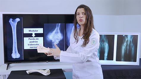 Sistema Ósseo: Neoplasias e Osteomielites