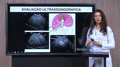 Imaginologia do Fígado