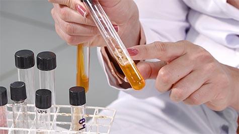 Família Enterobacteriacea: Salmonella e Shigella