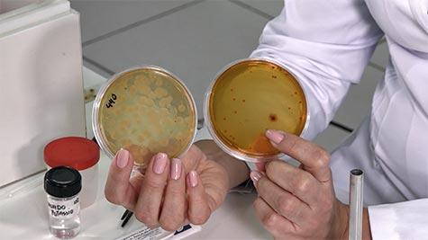 Gêneros Candida e Malassezia