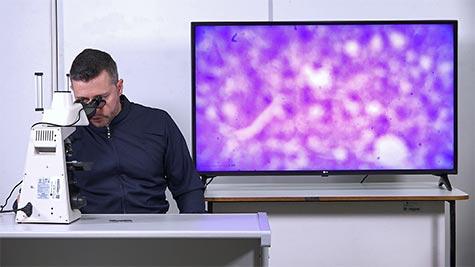 Degenerações Celulares: Gordurosa e Glicogênica