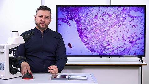 Degenerações Celulares: Hidrópica e Hialina