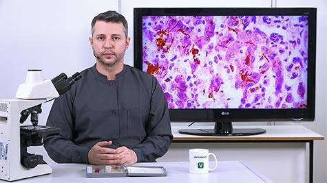 Pigmentações Patológicas: Bilirrubina e Hemossiderina